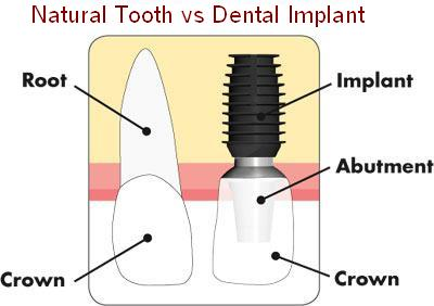 What is the difference between Natural Teeth & Dental Implant - Pittsburgh PA