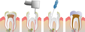 How a root canal is proformed on a Molar.